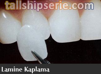 lamina diş fiyatları, lamina diş tedavisi, Diş sağlığı