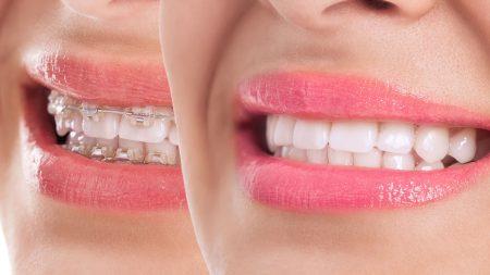 ortodonti fiyatları, ortodonti tedavisi fiyatları, ortodonti tedavi fiyatları ne kadar