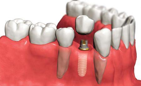 implant markalarında kalite, ekonomik implant markaları