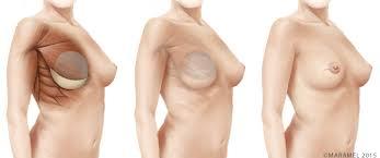 göğüs kanseri belirtileri, göğüs kanseri nasıl anlaşılır