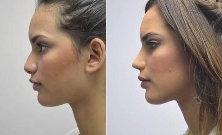 burun estetiği yapımı, burun estetiği ameliyatı, burun estetği ameliyatı teknikleri