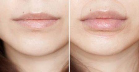 dudak kalınlaştırma operasyonu, dudak kalınlaştırma ameliyatı, dudak kalınlaştırma nasıl yapılır