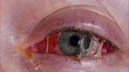 göz hastalıkları, göz kapağı hastalıkları, göz yaşı hastalıkları