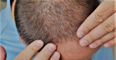 saç lazeri, saç ekimi, kellik tedavisi