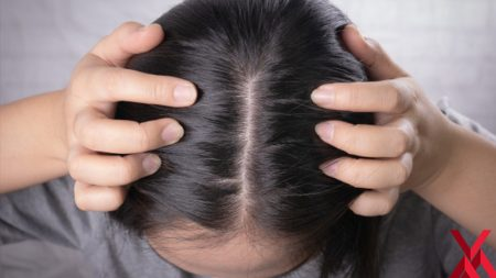 saç mezoterapisi, saç mezoterapisi yapımı, saç mezoterapisi nedir