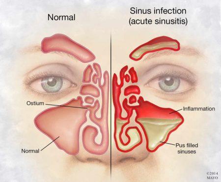 sinüzit tedavisi, sinüzit tedavisi yapımı, sinüzit nasıl tedavi edilir