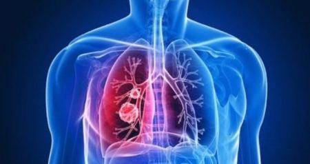 soğuğa bağlı hastalıklar, soğuğa bağlı hastalıklardan nasıl korunulur, bronşitten nasıl korunulur