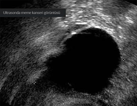 göğüs kanseri görüntülemesi, ultrason ekografi tekniği, göğüs kanserinde Ultrason Ekografi yöntemi